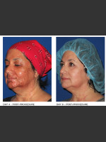 After Photo Alastin Skincare Procedure Enhancement System - ZALEA Before & After