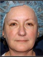 After Photo Treatment of Sun Damage & Flushing - Prejuvenation Before & After