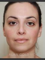 After Photo Rhinoplasty 1683 - ZALEA Before & After