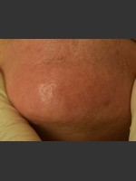 After Photo Cutera Laser Treatment - ZALEA Before & After