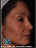 After Photo Female Full Face Fraxel Treatment  - ZALEA Before & After