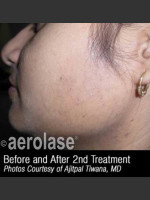 After Photo Hair Removal #310 - ZALEA Before & After