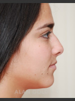 Before Photo Rhinoplasty 1676 Side View - ZALEA Before & After