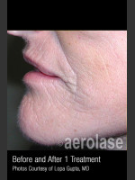After Photo Treatment of Wrinkles, Tone and Texture #341 - ZALEA Before & After