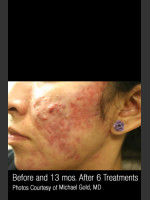 Before Photo #301 - Treatment of Cystic Acne - ZALEA Before & After