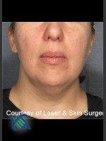Before Photo Laser Liposuction Submental Fat Treatment - ZALEA Before & After