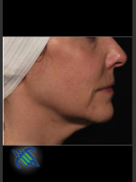 Before Photo Right Side Facial Laxity with Profound - ZALEA Before & After