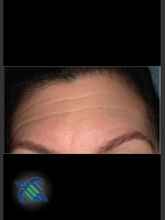 Before Photo Treatment of Forehead Finelines and Wrinkles - ZALEA Before & After