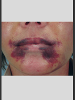 Before Photo Vbeam Laser of Post-operative Bruising - ZALEA Before & After