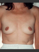 Before Photo Breast Augmentation 582 - ZALEA Before & After