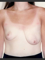 Before Photo Asymmetrical Breast 481 - Prejuvenation Before & After