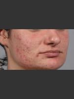Before Photo 3DEEP Intensif Microneedling Skin Remodeling #2 - ZALEA Before & After