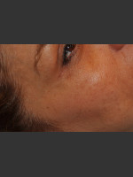 After Photo Dr. Palmer Vein Removal 01 - ZALEA Before & After
