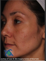 After Photo Treatment of Melasma on the Left Side - ZALEA Before & After