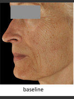 Before Photo DefenAge Skincare Clinical Power Trio - Prejuvenation Before & After