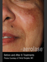 After Photo Treatment of Melasma #319 - Prejuvenation Before & After