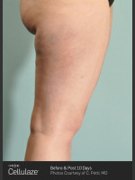 After Photo Cellulaze Cellulite Treatment of the Thighs - Prejuvenation Before & After