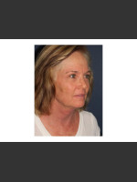 After Photo Chin Contouring & Sun Damage Treatment - Prejuvenation Before & After