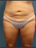 Before Photo Before and After Tummy Tuck - ZALEA Before & After
