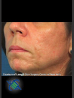 After Photo Treatment of Lower Face Acne Scarring - Prejuvenation Before & After