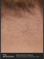 After Photo Tattoo Removal of Butterfly - Prejuvenation Before & After