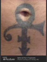 Before Photo Tattoo Removal Before & After Photo of Cross - Prejuvenation Before & After