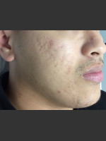 After Photo Microneedling  - Prejuvenation Before & After