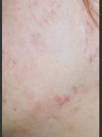 After Photo Quanta Eterna IPL Acne Treatment #79 - Prejuvenation Before & After