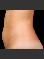 Before Photo SculpSure Abdomen - Prejuvenation Before & After