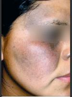 Before Photo Quanta MDK Nevus of Ota Treatment #76 - Prejuvenation Before & After