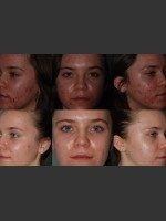 Before Photo Laser Treatment of Acne - Prejuvenation Before & After