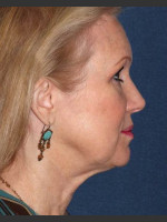 After Photo Non-invasive Chin Contouring - ZALEA Before & After