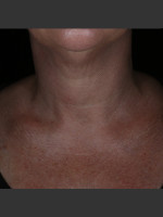 Before Photo Alastin Skincare Restorative Neck Complex with TriHex Technology® - Prejuvenation Before & After
