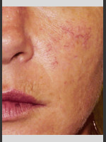 Before Photo Vbeam Pulsed Dye Laser treatment of Rosacea - Prejuvenation Before & After