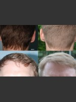 Before Photo Neograft Hair Transplant - Prejuvenation Before & After