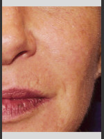 After Photo Vbeam Pulsed Dye Laser treatment of Rosacea - Prejuvenation Before & After