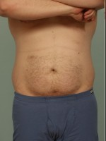Before Photo Liposuction - ZALEA Before & After