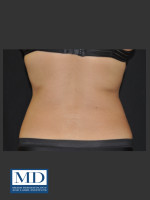 After Photo  Body Contouring Treatment 141 - ZALEA Before & After