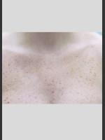 Before Photo Gentle Laser Skin Rejuvenation Treatment - ZALEA Before & After