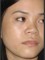 After Photo Quanta MDK Treatment of Pigment #78 - Prejuvenation Before & After