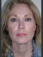 After Photo Sculptra for Facial Volume Restoration - Prejuvenation Before & After