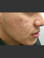 Before Photo Microneedling  - Prejuvenation Before & After