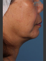 Before Photo Ultherapy Skin Laxity Treatment of Lower Face - ZALEA Before & After