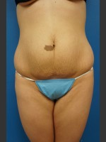 Before Photo Abdominoplasty (Tummy Tuck) Before & After - Prejuvenation Before & After