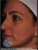 After Photo Left Side Full Face Skin Rejuvenation - ZALEA Before & After