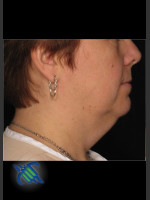 Before Photo Treatment of Neck with Laser Liposuction - Prejuvenation Before & After
