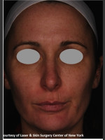 After Photo Full face Treament with Fraxel - Prejuvenation Before & After