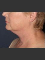 Before Photo Facial Liposculpture - Prejuvenation Before & After