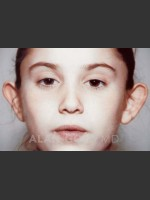 Before Photo Otoplasty Case 887 - Prejuvenation Before & After