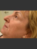 After Photo Fraxel Laser Treatment for Pigmentation - ZALEA Before & After